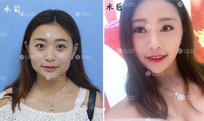 瘦脸针案例