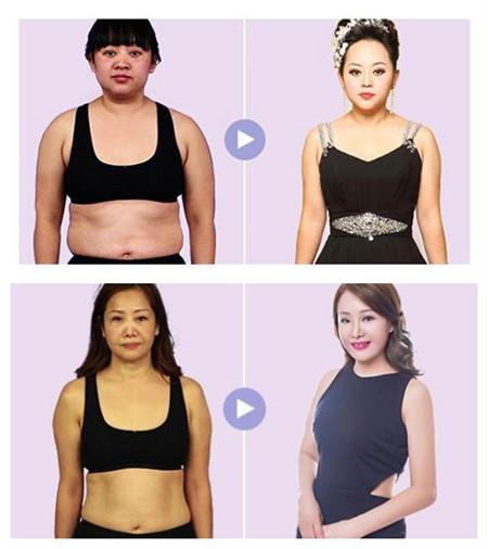 吸脂瘦身案例