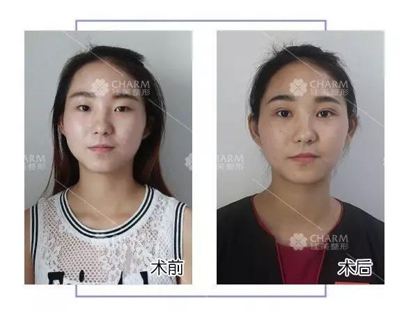 在南昌佳美整形割双眼皮后,她们像戴美瞳一样有神!