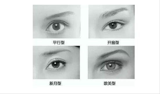 n多妹子喜欢平行双眼皮,尤其是欧式大平行,非要医生做出欧范的